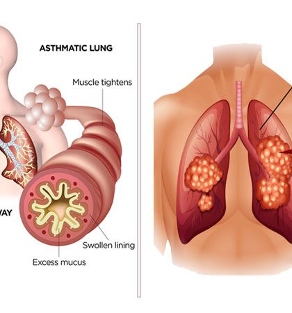 Lung Cancer Causes, Prevention, Symptoms