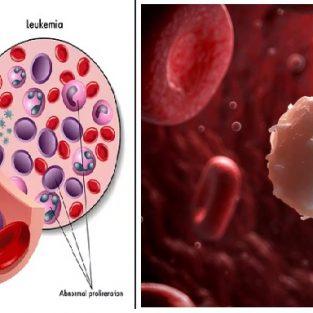 blood-cancer-prevention