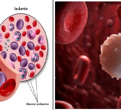 blood-cancer-prevention