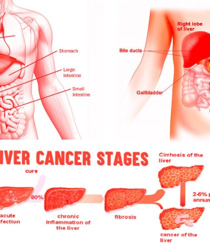 Liver-Cancer-Prevension