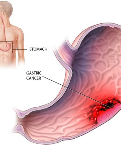 Stomach-Cancer-–-Causes-Symptoms-Diagnosis-And-Treatment