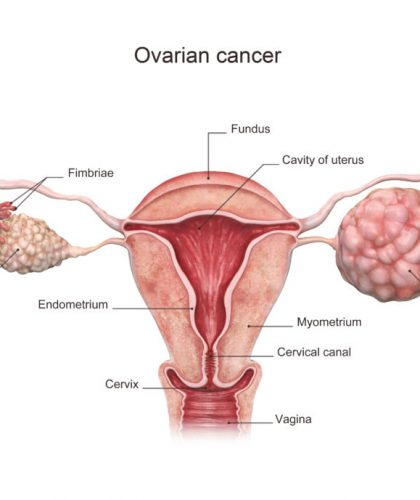 3d rendered illustration of the ovarian cancer.