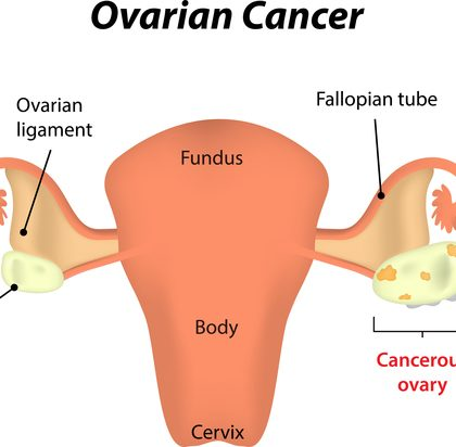 ovarian-cancer